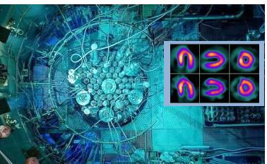 Les radiopharmaceutiques : des médicaments qui scintillent